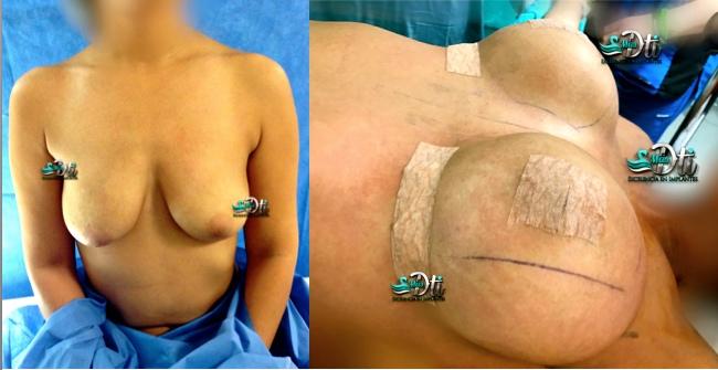 67 pexia periareolar con implantes de busto foto antes despues roel moyeda