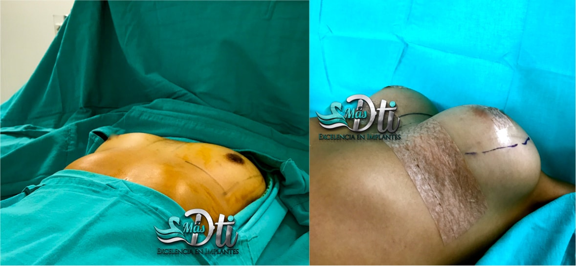 Aumento de busto con implantes caso 1
