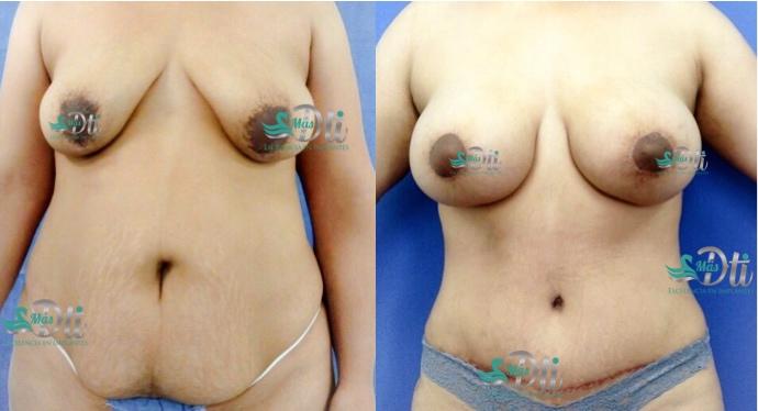 mommy makeover - aumento de busto y abdominoplastia - antes y despues roel moyeda