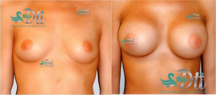 Aumento de busto - Antes y Después - Operación de senos