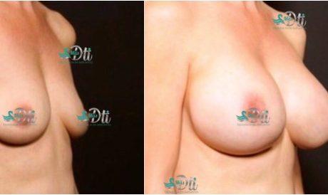 aumento de senos - antes y despues.