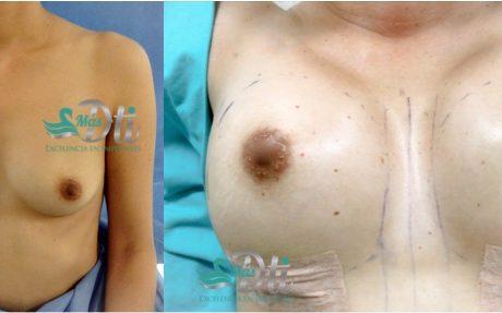 aumento de senos - antes y despues