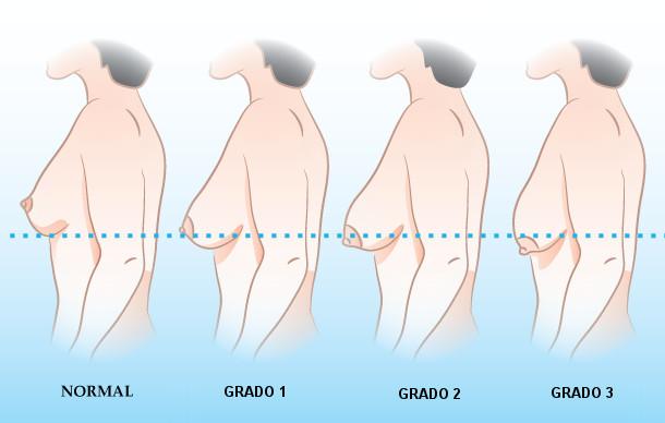grados de ptosis mamaria