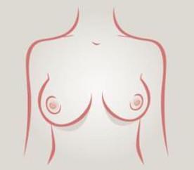 Senos asimétricos - tipos de senos