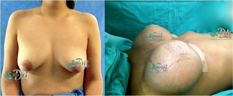 senos caidos - resultado de levantamiento de senos