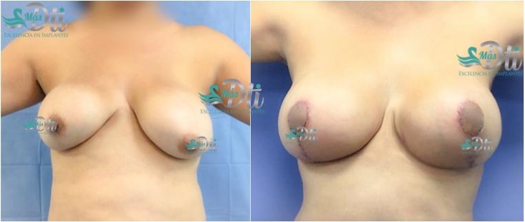 senos caidos - resultados del levantamiento de busto 1
