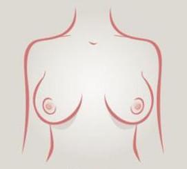 Senos conjunto lateral - tipos de senos