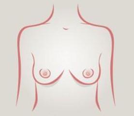 Senos delgados - tipos de senos