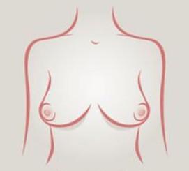 Senos este oeste - tipos de senos
