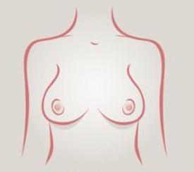 Senos forma de campana - tipos de senos