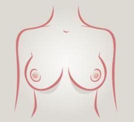 Senos redondos - tipos de senos