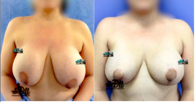 como disminuir el busto - cirugia