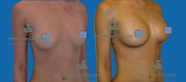 Aumento de busto con implantes - caso 74