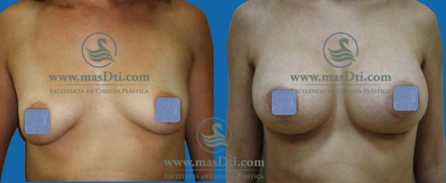 Aumento de Busto con implantes - caso 75