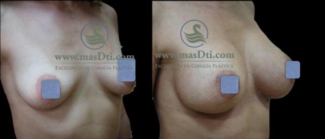 Aumento de Busto con implantes - caso 76