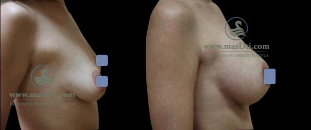 Aumento de Busto con Implantes - caso 77