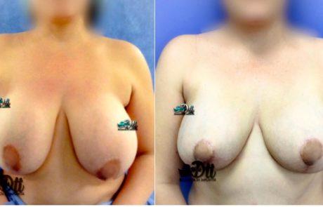 evantamiento de senos - antes y despues 4