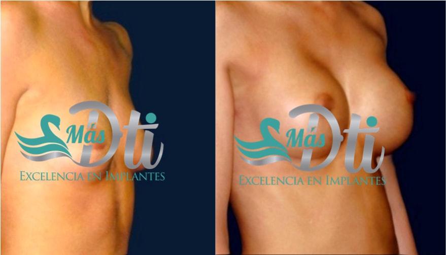 mamolastia de aumento - fotos antes y despues