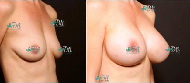 mamoplastia de aumento - fotos antes y despues